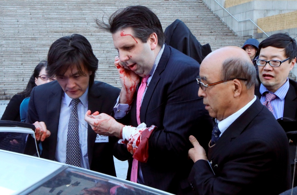 South Korea Ambassador Hurt
