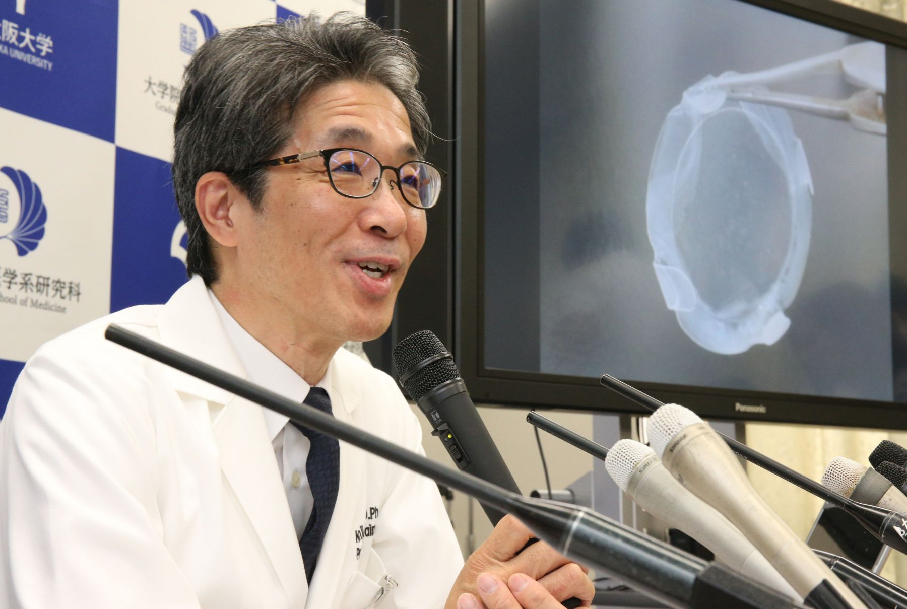Japan Osaka University Team Does World's First Successful iPS Cell-Derived Corneal Transplant